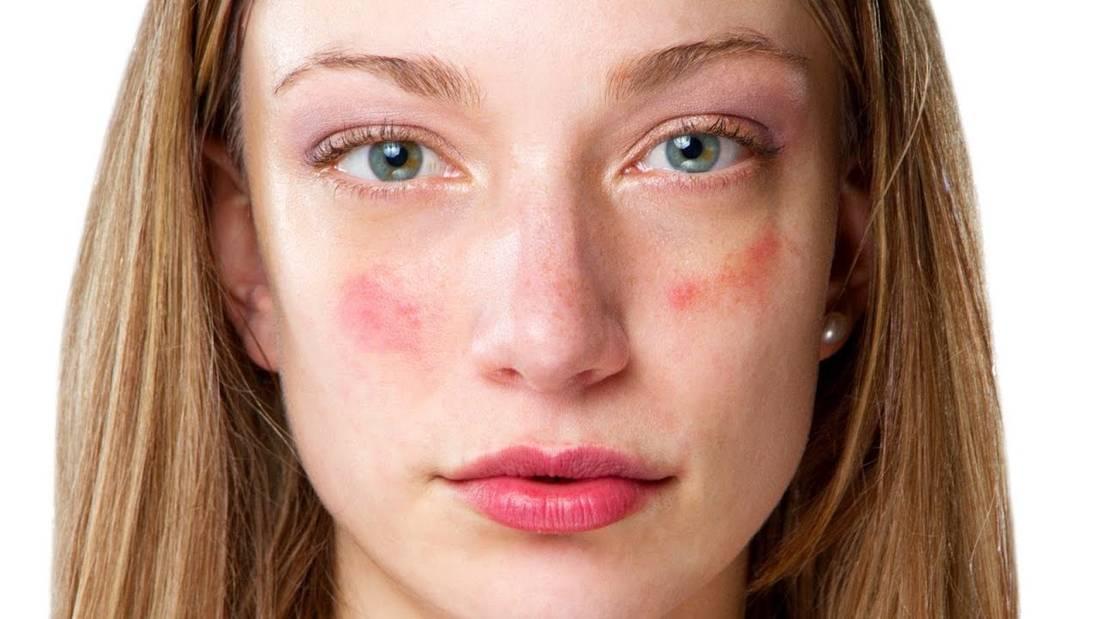 disease-facial-skin-free-swedish-porn-pics