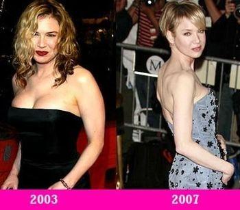 срочно похудеть на 20 кг за месяц